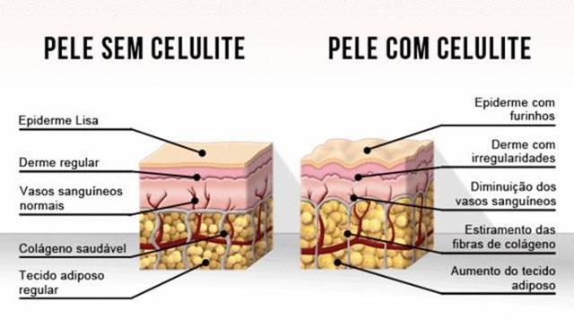 os-4-estagios-da-celulite